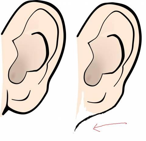 「朝鮮耳」はウソ 純日本人や西洋人にも存在すると判明 | 動画 ...